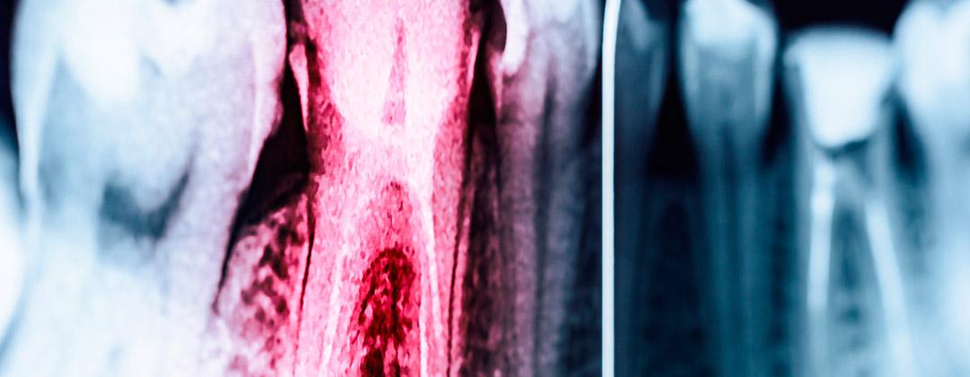 Endodontologie (Wurzelkanalbehandlung)