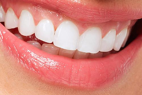 Zahnaufhellung Bleaching