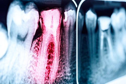 Endodontologie Wurzelkanalbehandlung