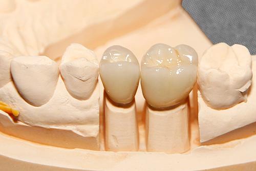 Suprakonstruktionen auf Implantate